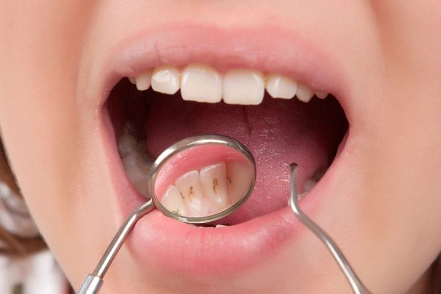 Understanding Dental Plaque And What It Does To Your Mouth